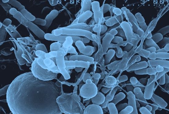 Intestinal gut flora and the need for probiotics